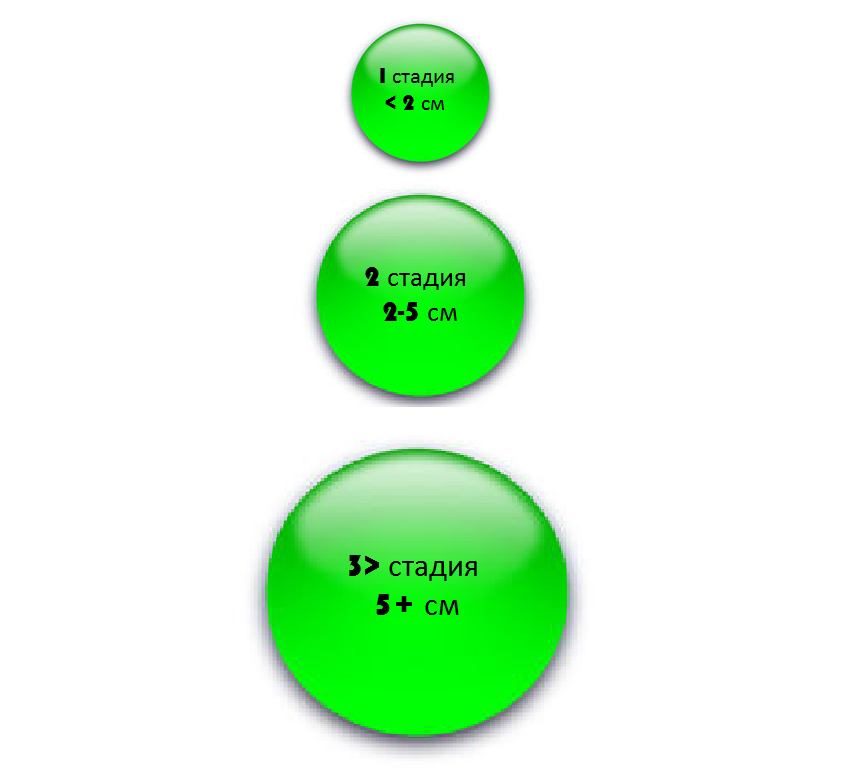 Размер опухоли
